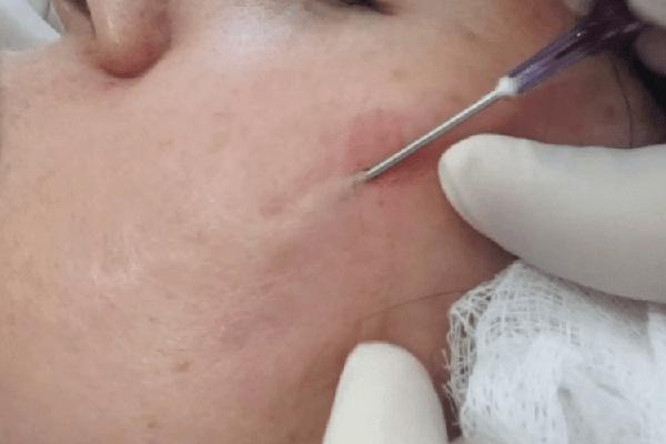 درمان جای جوش با سابسیژن