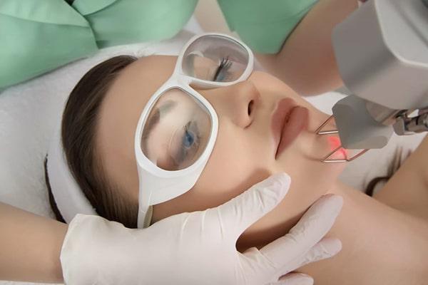 درمان جای جوش صورت با لیزر