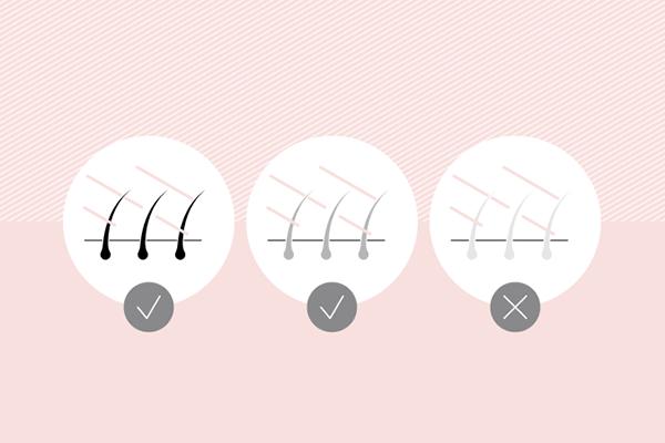 لیزر موهای زائد بدن بر اساس نوع مو