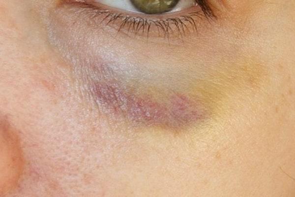 کبودی بعد از مزوتراپی