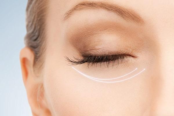 آیا تزریق بوتاکس دور چشم واقعا موثر است؟
