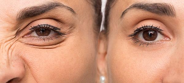 نتایج بوتاکس زیر چشم چه مدت ماندگاری دارند؟