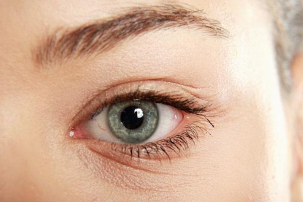 چرا بوتاکس در زیر چشم ها تزریق می شود؟