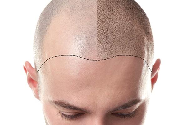 مزایای مزوتراپی برای درمان ریزش مو