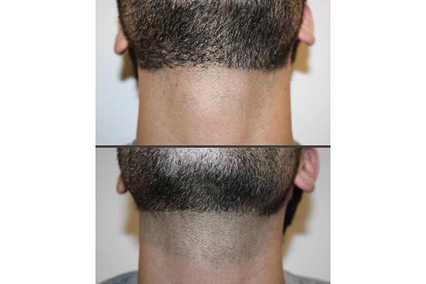 لیزر موهای صورت مردان