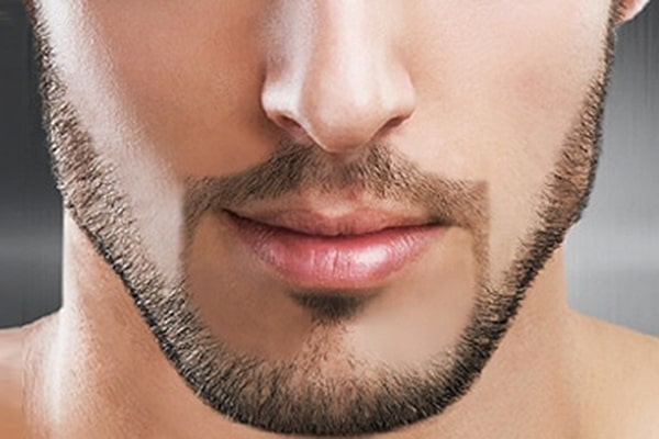 آراستگی آسان تر صورت و رفع مو های زیر پوستی
