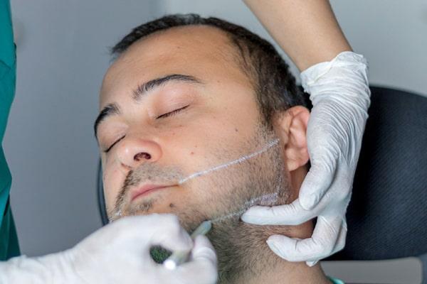 روش تزریق ژل برای زاویه سازی صورت گرد